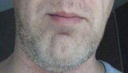 LB chin stubble