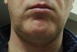 LB chin shaved